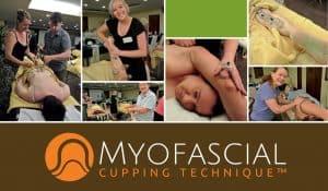 myofascial cupping image